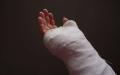 骨折符合轻伤鉴定标准吗
